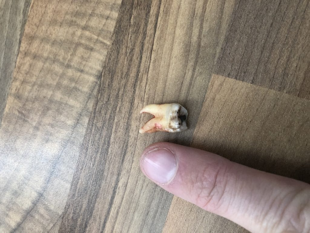 A wisdom tooth freshly removed next to a finger to show scale.